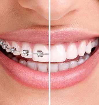 legjobb fogszabályozás budapest