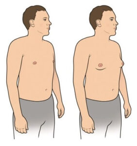 gynecomastia ár