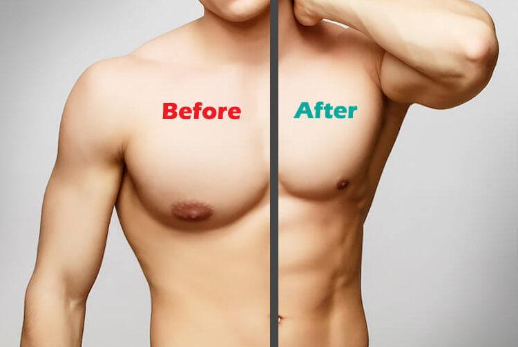 gynecomastia előtte utána